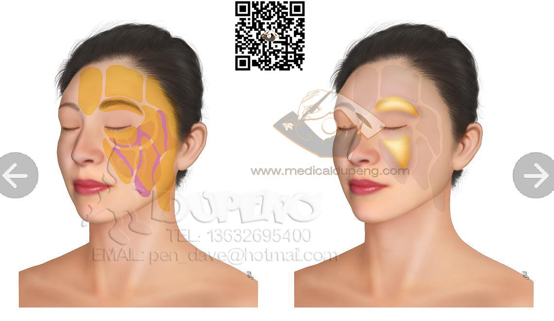 年轻亚洲人面部美容的泛面部脂肪注射法 Panfacial Fat Injection Approach in Young Asian Patients for Facial Contouring