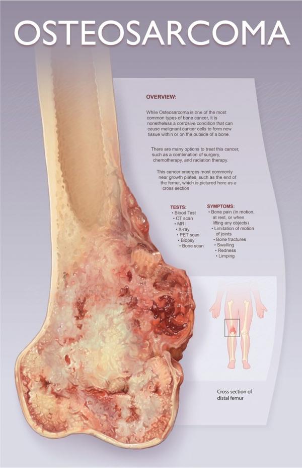 骨肉瘤 Osteosarcoma 美国医学插画师协会 2018 沙龙展