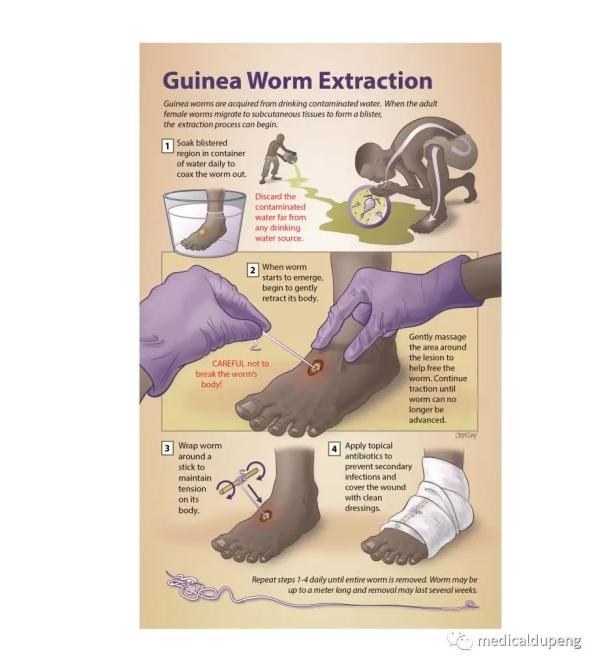 提取麦地那龙线虫(几内亚龙线虫) Guinea Worm Extraction矢量图医学插画