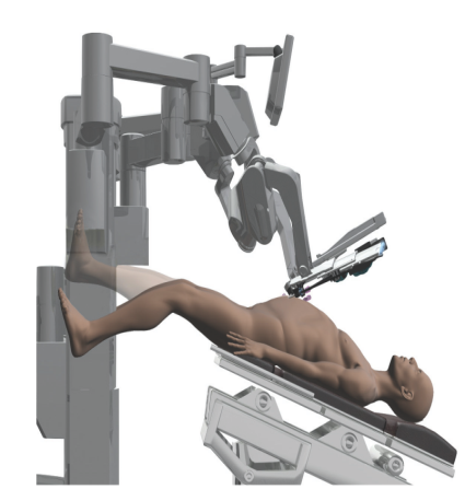 机器人辅助盆腔手术的患者体位及3臂和4臂机器人手术的器械布局01