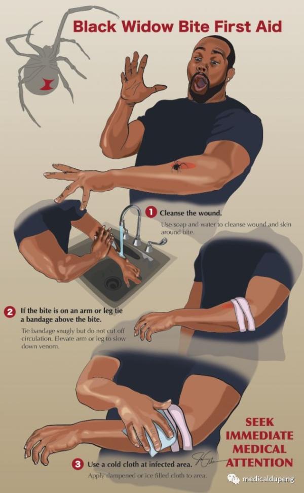 被黑寡妇咬伤后的急救-立即就医 Black Widow Bite First Aid - Seek Immediate Medical Attention 矢量图医学插画