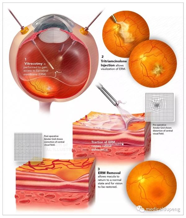 玻璃体切除术与视网膜前膜剥离 Vitrectomy with an Epiretinal Membrane Peel 美国医学插画师协会 2018 沙龙展