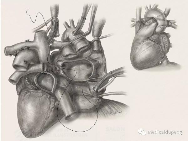 全反位心脏移植术 Heart Transplantation in Situs Inversus Totalis 美国医学插画师协会 2018 沙龙展