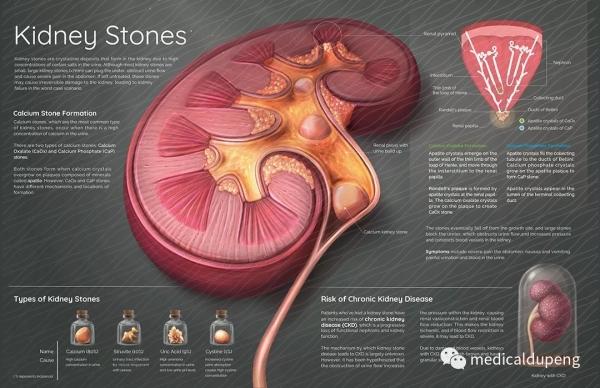 肾结石病的病因和发病机制 Etiology and Pathogenesis of Kidney Stone Disease 美国医学插画师协会 2018 沙龙展