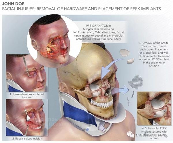 面部损伤 取出硬物并植入PEEK 植入物 Facial Injuries Removal of Hardware and Placement of PEEK Implants 美国医学插画师协会 2018 沙龙展