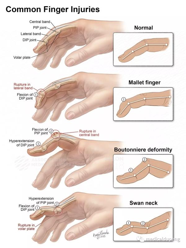 常见的手指受伤 Common Finger Injuries 美国医学插画师协会 2018 沙龙展