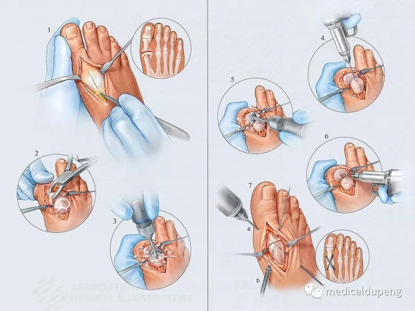 第一跖趾关节的关节融合术 Arthrodesis of the First Metatarsophalangeal Joint 美国医学插画师协会 2018 沙龙展