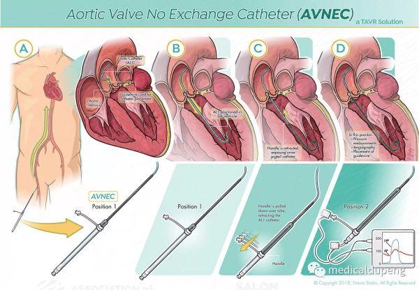 主动脉瓣无交换导管 Aortic Valve No Exchange Catheter (AVNEC) 美国医学插画师协会 2018 沙龙展