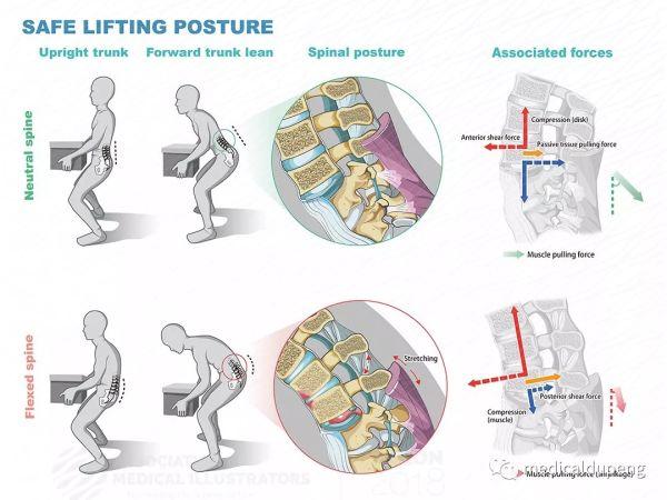 安全搬举物体的姿势 Safe Lifting Posture 美国医学插画师协会 2018 沙龙展