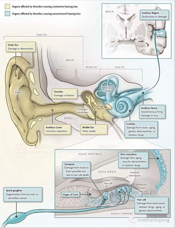 影响听觉系统的疾病 Diseases Affecting the Auditory System 美国医学插画师协会 2018 沙龙展