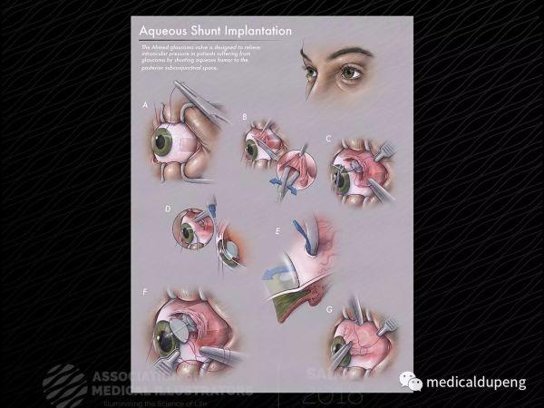 房水分流器植入术 Aqueous Shunt Implantation 美国医学插画师协会 2018 沙龙展