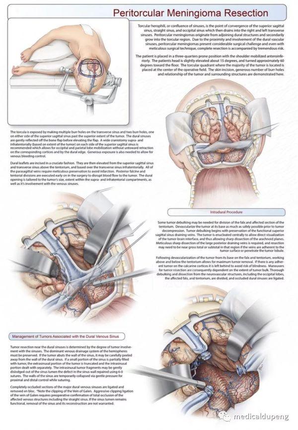 窦汇旁脑膜瘤切除术 Aqueous Shunt Implantation 美国医学插画师协会 2018 沙龙展