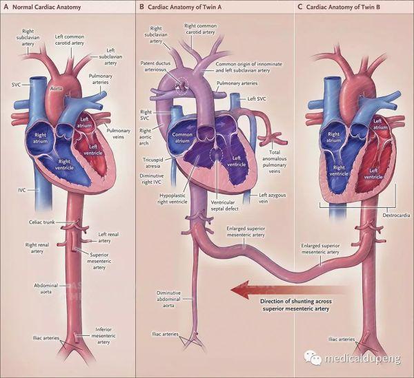 22月龄连体双胞胎合并复杂先天性心脏病的心脏解剖 Cardiac Anatomy of 22-Month-Old Conjoined Twins with Complex Congenital Heart Disease 美国医学插画师协会 2018 沙龙展