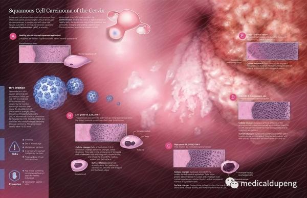 子宫颈鳞状细胞癌 Squamous Cell Carcinoma of the Cervix 美国医学插画师协会 2018 沙龙展