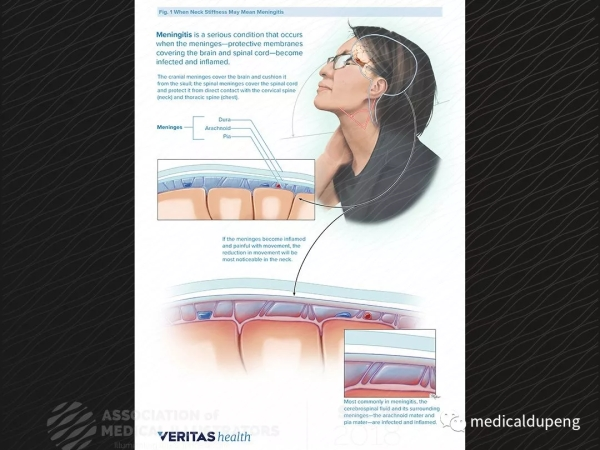 脑膜炎 Meningitis 美国医学插画师协会 2018 沙龙展